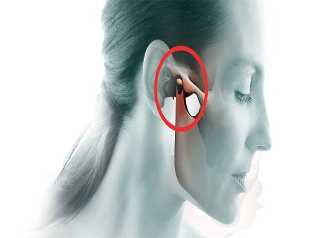 Артроз лицевого сустава симптомы и лечение