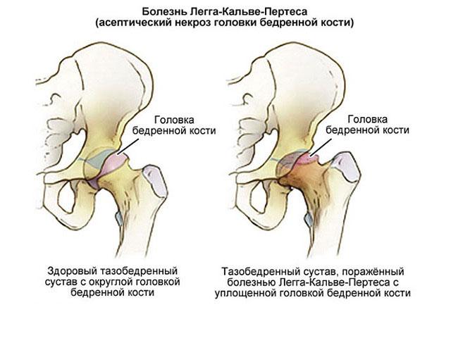Лечение асептического некроза бедренного сустава наложение повязок на кисть, коленный сустав, голень, предплечие