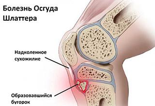 Болезнь Шляттера у подростков и детей, лечение коленного сустава