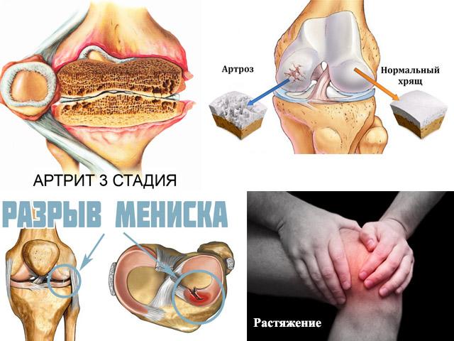 Изображение - Бандаж для фиксации коленного сустава kolennii-bondazh-1