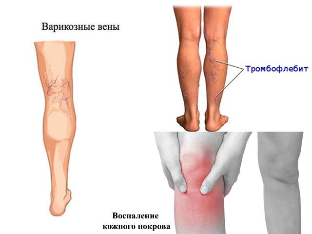 Изображение - Бандаж для фиксации коленного сустава kolennii-bondazh-7