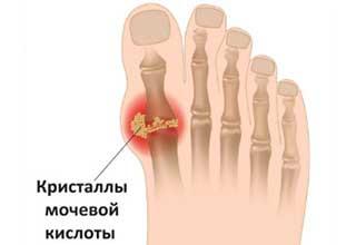 Чем отличается артрит от подагры