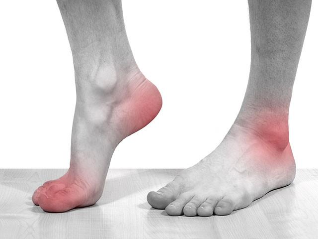 артрит и подагра в чем разница