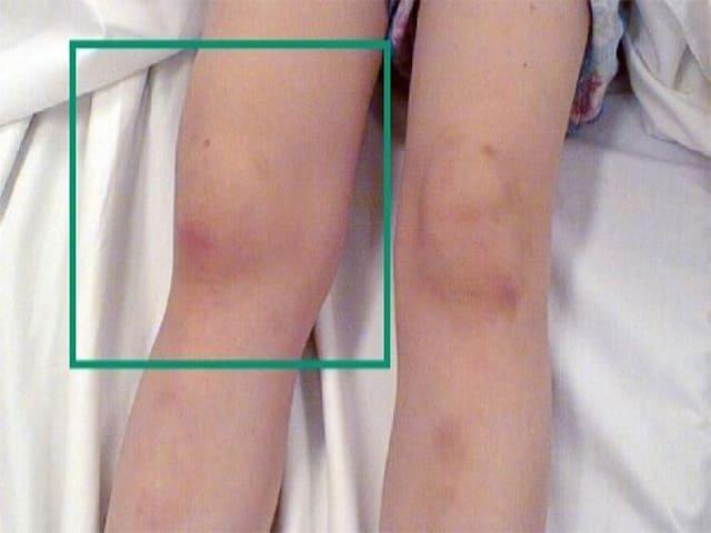 Ревматоидный артрит коленного сустава: симптомы и лечение