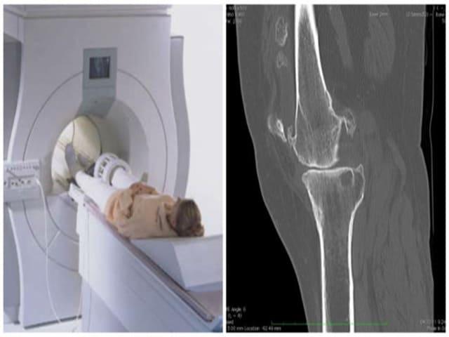 Диагностика и лечение ревматоидного артрита