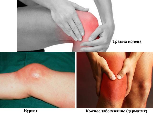 Изображение - Бурсы коленного сустава анатомия stroenie-kolennogo-sustava-5