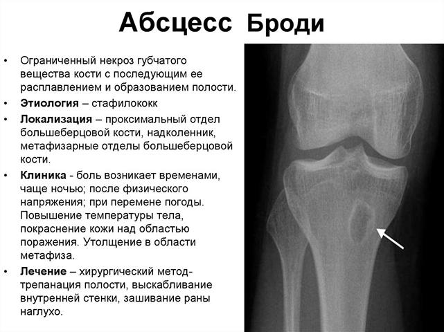 Изображение - Бурсы коленного сустава анатомия stroenie-kolennogo-sustava-6