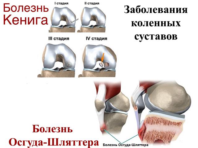Изображение - Бурсы коленного сустава анатомия stroenie-kolennogo-sustava-8