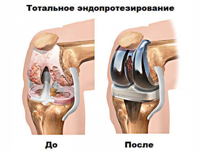 Изображение - Бурсы коленного сустава анатомия stroenie-kolennogo-sustava-9