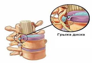 Лечебная физкультура при грыже поясничного отдела позвоночника (фото, видео)