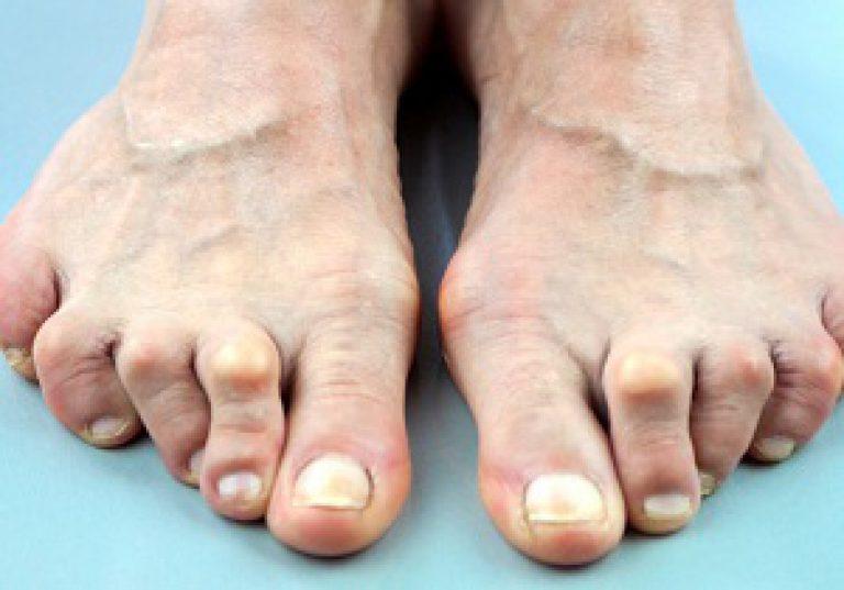 Чем лечить артрит суставов стопы