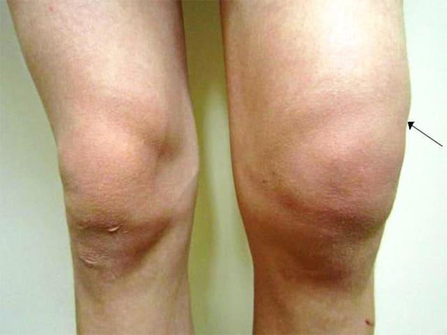 Изображение - Опухло колено и болит сустав koleno_opuhlo5