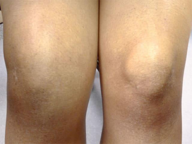 Боль при полном разгибании колена