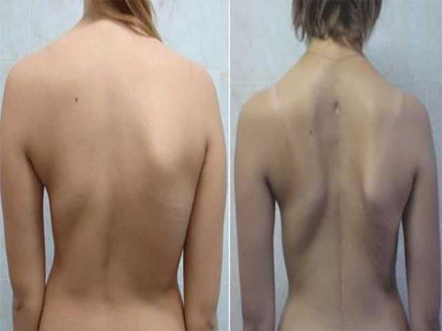 Диагностика и лечение сколиоза грудного отдела позвоночника
