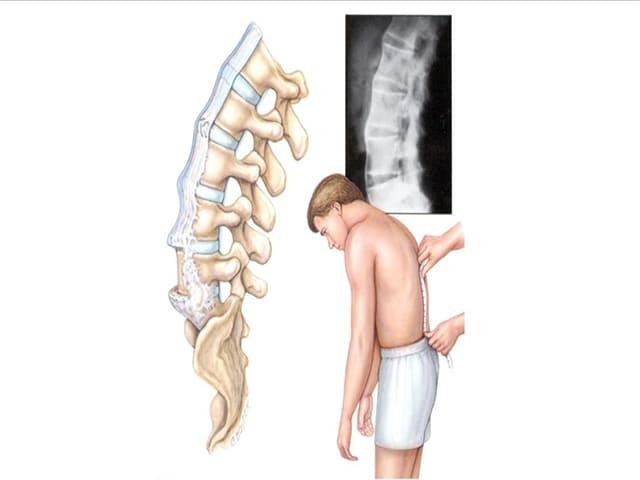 Спондилоартроз пояснично крестцового отдела позвоночника симптомы лечение