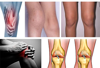 Гонартроз коленного сустава 1 степени лечение медикаментами