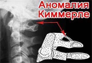 Аномалия Киммерли - что это такое? Причины, диагностика и лечение