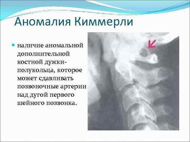 Аномалия Киммерле что это такое Причины симптомы и лечение